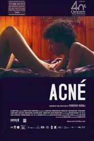 Film Acne.